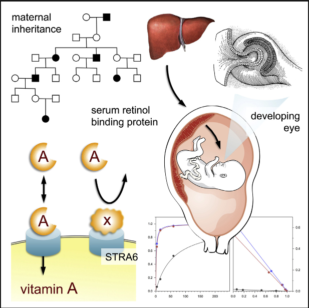 Gestational vitamin A (retinol) deficiency poses a risk for ocular birth defects and blindness. We identified missense mutations in RBP4, encoding serum retinol binding protein, in three families with eye malformations of differing severity, including bilateral anophthalmia. The mutant phenotypes exhibit dominant inheritance, but incomplete penetrance. Maternal transmission significantly increases the probability of phenotypic expression. RBP normally delivers retinol from hepatic stores to peripheral tissues, including the placenta and fetal eye. The disease mutations greatly reduce retinol binding to RBP, yet paradoxically increase the affinity of RBP for its cell surface receptor, STRA6. By occupying STRA6 nonproductively, the dominant-negative proteins disrupt vitamin A delivery from wild-type proteins within the fetus, but also, in the case of maternal transmission, at the placenta. These findings establish a previously uncharacterized mode of maternal inheritance, distinct from imprinting and oocyte-derived mRNA, and define a group of hereditary disorders plausibly modulated by dietary vitamin A.  Biochemical Basis for Dominant Inheritance, Variable Penetrance, and Maternal Effects in RBP4 Congenital Eye Disease.  Glaser et al 2015.