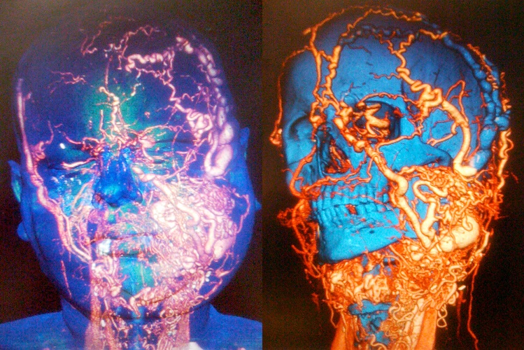 A man, who did not want to be identified, underwent the 'world's most complex' face transplant to reconstruct his neck, mouth, tongue and throat. The X-ray on the right-hand side shows him before the operation.  The X-ray on the left-hand side shows the man after having his entire lower face reconstructed, which doctors say allowed him to live a 'normal life'.  Credit:  Vall d'Hebron University Hospital 2015.