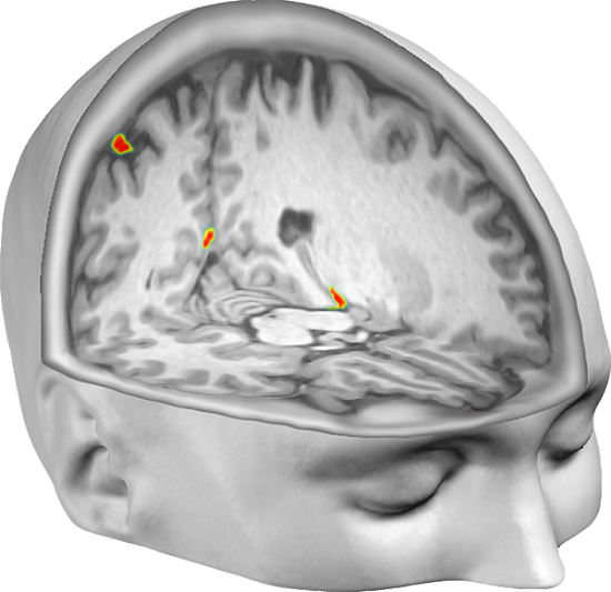 Brain regions in which the scientists could successfully decode the participants' perceived self-location from patterns of neural activity. Credit: Malin Björnsdotter/Arvid Guterstam.  Henrik Ehrsson , Arvid Guterstam , Malin Björnsdotter.
