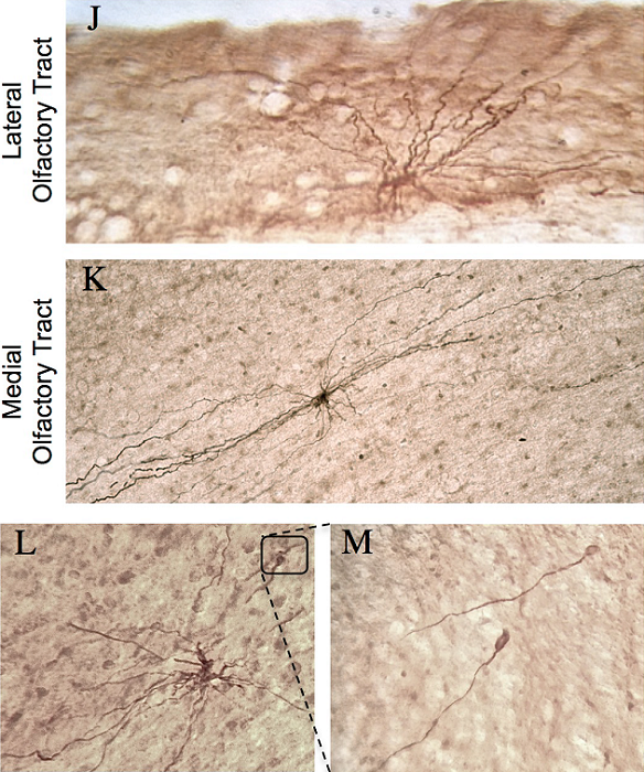 Cellular composition and characterization of doublecortin-immunoreactive (DCX-IR) cells in the human olfactory tract (OT) and subventricular zone (SVZ).  (J-K) DCX-IR multipolar cells were present in both lateral and medial regions. DCX-IR processes were generally aligned parallel to the tract, particularly in medial OT regions. (L-M) Occasionally, DCX-IR multipolar cells possessed bulbous, growth cone-like tips.  Increased doublecortin (DCX) expression and incidence of DCX-immunoreactive multipolar cells in the subventricular zone-olfactory bulb system of suicides.  Mechawar et al 2015.