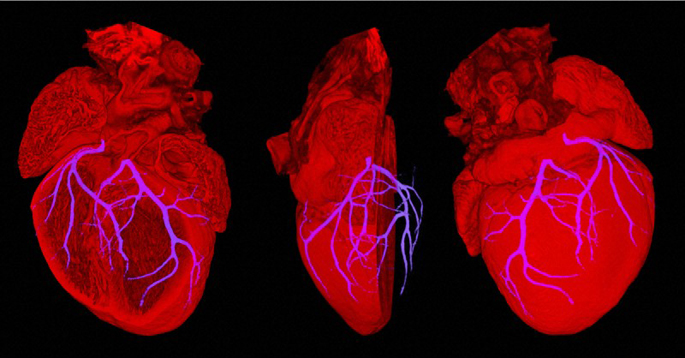 Composite image showing an embryonic heart from a mouse embryo at stage E18.5. The coronary circulation is crucial to the hearts function as it provides blood to the thick muscle tissue of the heart itself. These coronary arteries are very small and difficult to image using standard techniques, they are normally observed by injecting the coronary circulation with a dye and using x-rays to image.  High Resolution Episcopic Microscopy (HREM).  Credit: NIMR, MRC. Wellcome Images.