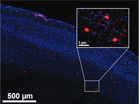 featured image UCI neurobiologists restore youthful vigor to adult brains - neuroinnovations