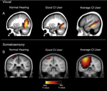 How does the brain respond to hearing loss - neuroinnovations