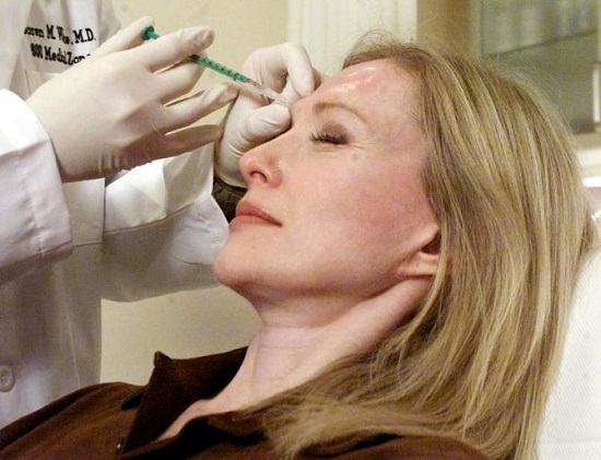 Pliability, elasticity of skin increase following wrinkle treatment with Botox  -healthinnovations