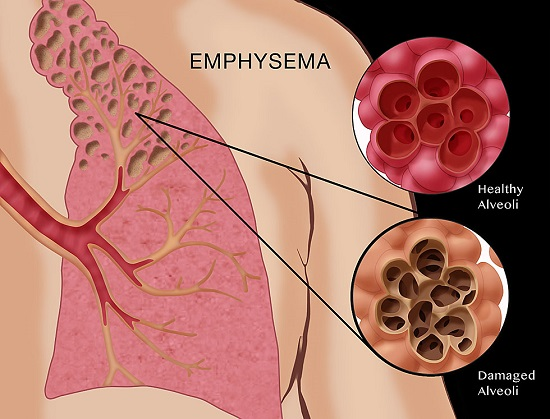 Illustration depicting emphysema, a condition characterized by damage to the alveoli. Alveoli are the small air sacs at the end of the respiratory tree (in the lungs). Long term exposure to compounds found in cigarette smoke (such as carbon monoxide and cyanide) are believed to be responsible for loss of elasticity in the alveoli, leading to emphysema and other lung diseases such as COPD (chronic obstructive pulmonary disease). The illustration also includes the appearance of healthy alveoli for comparison.