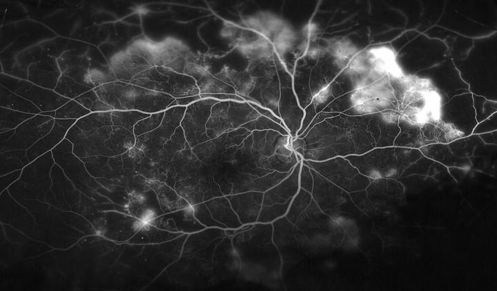This image shows the blood vessels in the retina of a patient with proliferative diabetic retinopathy.  Credit:  Wilmer Photography.