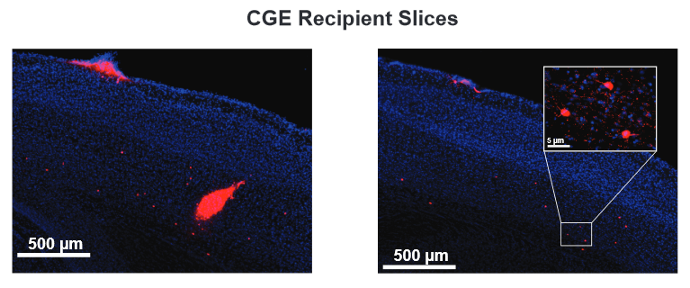 Laminar distribution of inhibitory neurons from CGE and MGE transplantations.  Example sections from a CGE recipient cells 42 days after transplantation (DAT) into adult visual cortex that express the GABAergic neuron marker VGAT (red).  Many transplanted inhibitory cells are found close to the injection site (left). Some transplanted CGE cells migrate into the adult cortical tissue (right).  Inhibitory Neuron Transplantation into Adult Visual Cortex Creates a New Critical Period that Rescues Impaired Vision.  Gandhi et al 2015.