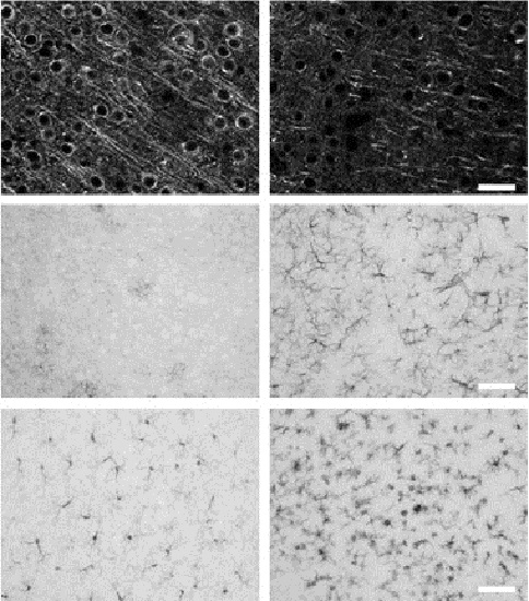 Neurodegeneration and gliosis induced by kainic acid (KA). Mice were injected with 20 mg/kg KA or vehicle (VEH), and euthanized 2 or 7 days later.  Histological quantitation of neurodegeneration was performed on fluorescently labeled microtubule-associated protein 2 (MAP2; neuron dendrites and cell bodies) sections. Quantitation of gliosis was performed on immunoperoxidase glial fibrillary acid protein (GFAP; reactive astrocytes) and ionizing calcium-binding adaptor molecule 1. Qualitative images show examples of MAP2, GFAP, and IBA1 immunostains on VEH- or KA-treated mice. Results obtained for the synaptic markers synaptophysin were similar to those of MAP2. The extent of neurodegeneration and gliosis was similar at 2 and 7 days, probably a reflection of the high sensitivity of the FVB/N mouse strain to excitotoxicity.  The Mouse Brain Metabolome.  Buttini et al 2015.