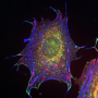FI Scientists identify protein that sustains heart function into old age - healthinnovations