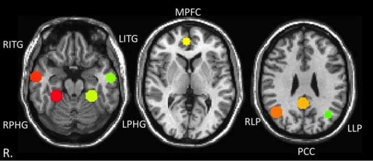 Visualization of the anatomy of the default mode network (DMN) regions of interest (ROIs) along with the respective Montreal Neurological Institute (MNI) coordinates. The ROIs are shown in standard space overlaid on the MNI template. PCC: Posterior cingulate cortex (PCC). MPFC: Medial prefrontal cortex. RLP: Right lateral parietal. LLP: left lateral parietal.  LITG: Left inferior temporal gyrus. RITG: Right inferior temporal gyrus. LPHG: Left parahippocampal gyrus. RPHG: Right parahippocampal gyrus.  Investigation of Multiple Frequency Ranges using Discrete Wavelet Decomposition of Resting State Functional Connectivity in Mild Traumatic Brain Injury Patients.  Gullapalli et al 2015.