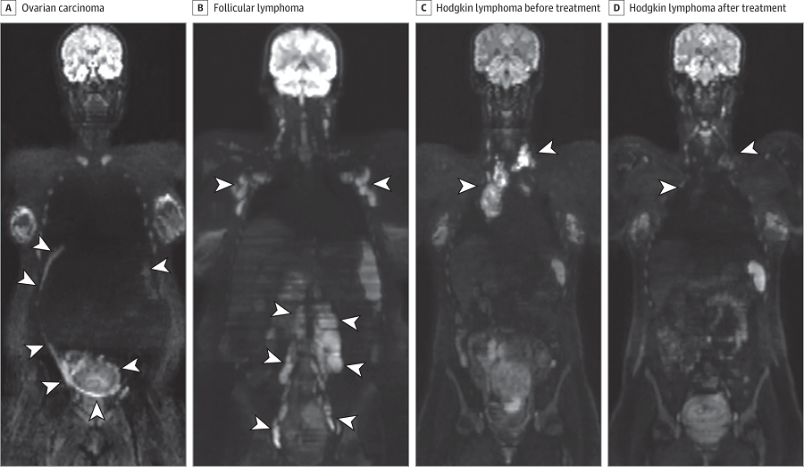 Whole-Body Diffusion-Weighted Magnetic Resonance Images.  A, Ovarian carcinoma in patient 1. B, Follicular lymphoma in patient 2. C and D, Hodgkin lymphoma before (C) and after (D) treatment in patient 3. The arrowheads in all panels point to the tumor locations. D, Arrowheads point to areas of treatment response (complete remission).  Presymptomatic Identification of Cancers in Pregnant Women During Noninvasive Prenatal Testing.  Vermeesch et al 2015.