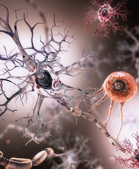 Neuron, Oligodendrocytes and Microglia.  Medical Animation by Joel Dubin, 2014.