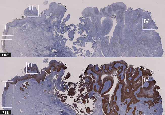 Negative correlation between ERα and p16 expression during cervical cancer progression.  IHC stains for ERα (Top) and p16 (Bottom) in a cervical specimen representing complete disease progression.  Molecular transitions from papillomavirus infection to cervical precancer and cancer: Role of stromal estrogen receptor signaling.  Ahlquista et al 2015.