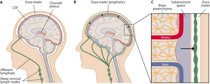 Novel Lymphatic Vessel Network.  A schematic image of the novel lymphatic vessel network in the meningeal linings of the brain, discovered by Aleksanteri Aspelund and collaborators. (A) Previously, lymphatic vessels in the nasal mucosa were known to drain cerebrospinal fluid, but it was thoughts that the lymphatic vessels did not extend into the brain. (B-C) The new findings revealed that the dura mater lymphatic system is important for the drainage of brain interstitial fluid, macromolecules and cerebrospinal fluid.  Credit:  Kari Alitalo.