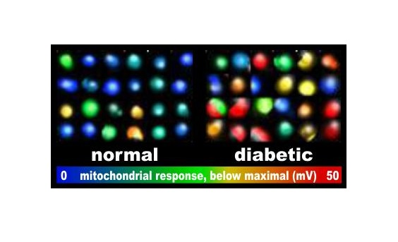 The illustration shows individual pancreatic beta-cells from a patient with type 2 diabetes and a patient without the disease. Cells were visualized by artificially coloring their fluorescence image according to the deficit in the response of their mitochondria to glucose. Warmer colors show a larger deficit, indicating how much more response is possible when intracellular energy demand is experimentally shut off. Beta-cells from each of the observed type 2 diabetic donors underperformed beta-cells from normal donors in this respect. Interestingly, the maximal possible response in the absence of intracellular energy demand was not impaired, demonstrating that the mitochondrial polarization and downstream insulin secretion is determined by the supply-demand balance of the intracellular energetics in whole.  Credit: Akos Gerencser, Ph.D.
