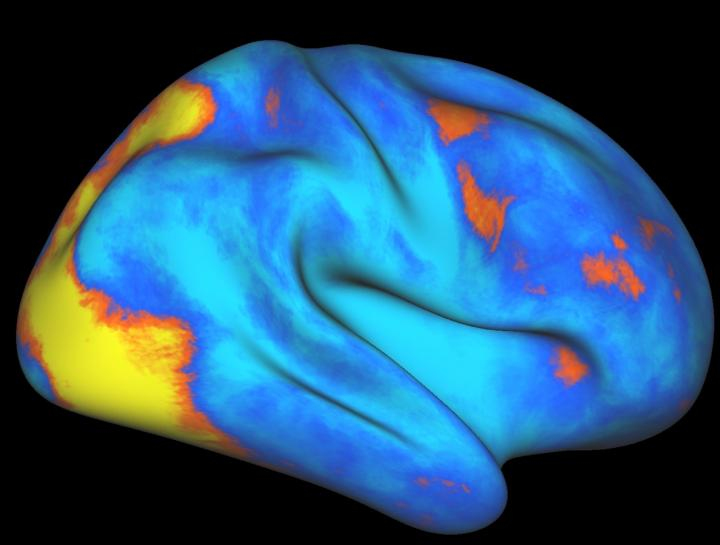 Pictured are the increases (orange-­yellow) and decreases (blue) of neural activity in the brains of humans and macaques while performing the same attention task as measured by functional magnetic resonance imaging.  In this study, the researchers found that the attention networks in humans fundamentally differ from those of macaques in three ways: the networks contain more areas, more information is shared between brain hemispheres, and humans possess an entire attention control network that is missing from macaques.  The results suggest that the attention network has evolved to support uniquely human cognitive functions.  Credit: Image courtesy of Gaurav Patel/New York State Psychiatric Institute/Columbia University Medical Center.