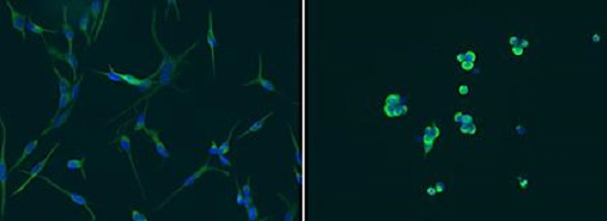 Non-tumorigenic glioblastoma cells (left) can spontaneously acquire cancer stem cell characteristics (right).  Credit:  UC San Diego School of Medicine.