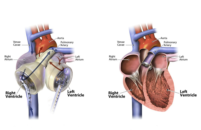 The SynCardia Total Artificial Heart, at left, and a human heart, at right.  Credit: SynCardia 2015