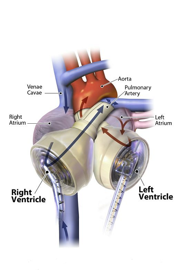 ft First patient ever receives successful transplant after using 50cc Total Artificial Heart  - healthinnovations