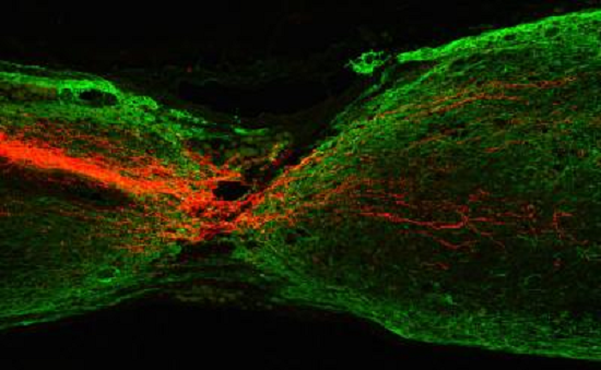 ft HKUST researchers discover ways to regenerate corticospinal tract axons - neuroinnovations