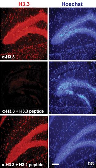 ft New epigenetic mechanism revealed in brain cells - neuroinnovations