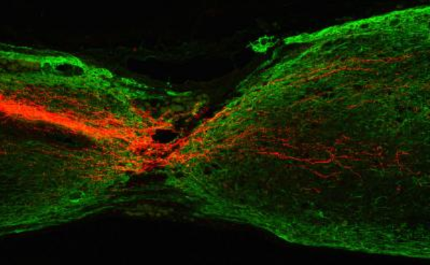 Regeneration of Mouse Corticospinal Tract Axons.  This sagittal section shows the regeneration of mouse corticospinal tract axons (red) 7 months after Pten deletion was initiated in motor cortex. Pten deletion was initiated 1 year after spinal cord injury in this mouse. Green labels glial fibrillary acidic protein.  Credit:  Division of Life Science, HKUST.