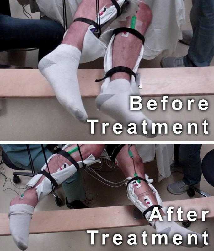 This image shows the range of voluntary movement prior to receiving stimulation compared to movement after receiving stimulation, physical conditioning, and buspirone. The subject's legs are supported so that they can move without resistance from gravity. The electrodes on the legs are used for recording muscle activity. Credit: Edgerton lab/UCLA.