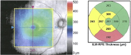 Macular thinning, as shown in a representative patient with schizophrenia in an ongoing study of the authors. Left panel: gray-scale image of the macula from right eye of patient. Central colorized panel is a topographic map overlay (50% transparency) showing thickness (in μm) from the inner limiting membrane (ILM, which covers the retinal nerve fiber layer; see Fig. 2) to the retinal pigment epithelium (RPE, which is beneath the photoreceptor layer). Thickness scale is depicted by the legend on right side of figure. Right panel: average thickness values of the segments are colorized relative to age-matched control subjects. Regions in yellow denote values observed in less than 5% of age-matched subjects; regions in pink–red denote values observed in less than 1% of age-matched subjects. This patient demonstrates borderline significant or significant thinning in more than half of the macular subregions in this eye.  Schizophrenia and the eye.   Rosen et al 2015.