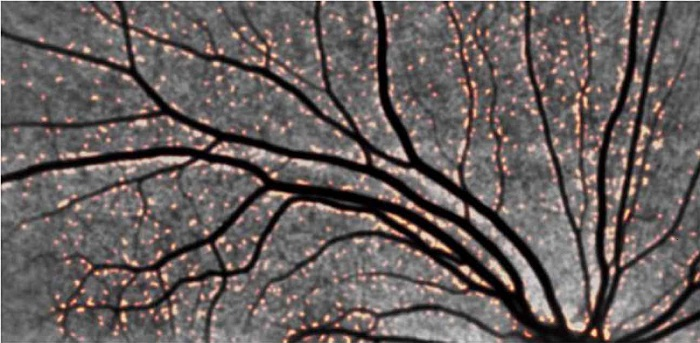 Representative retinal images from an adult with DS demonstrating positive amyloid plaques in DS. Note the orange-colored puncta. The distribution in the vicinity of blood vessels is striking, pointing to a retinal manifestation of congophilic angiopathy.  The down syndrome biomarker initiative (DSBI) pilot: proof of concept for deep phenotyping of Alzheimer's disease biomarkers in down syndrome.  Rissman et al 2015.
