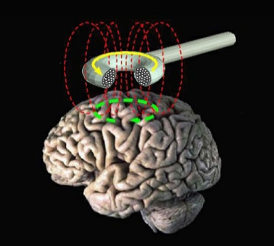 Magnetic stimulation effective in helping Parkinson's patients walk - neuroinnovations