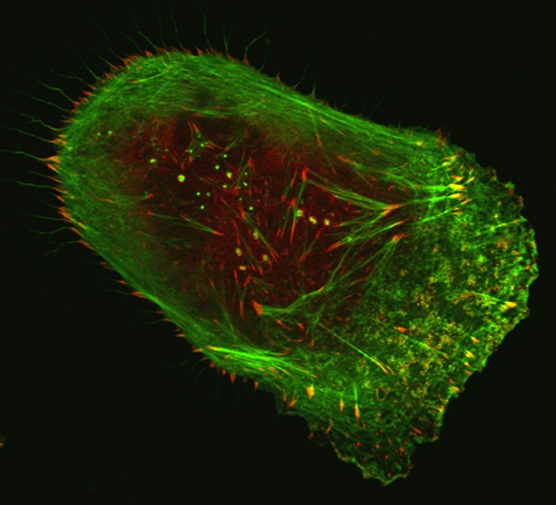 Human malignant melanoma cell viewed through a fluorescent, laser-scanning confocal microscope. Invasive structures involved in metastasis appear as greenish-yellow dots, while actin (green) and vinculin (red) are components of the cell's cytoskeleton.  Credit: Vira V. Artym, National Institute of Dental and Craniofacial Research, NIH.