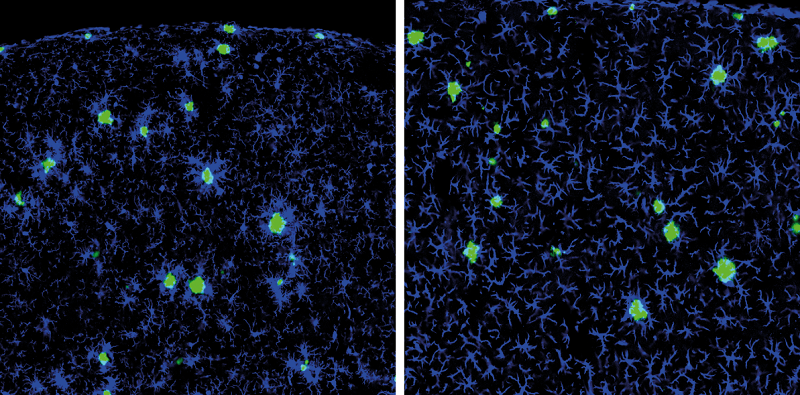 "Left: Aβ plaques (green) surrounded by resident microglia (blue) in AD mouse brains. Right: ""new"" peripheral macrophages (blue) that migrated into the brain of AD mice upon ablation of resident microglia, but ignore Aβ plaques.  Credit: Copyright JEM."