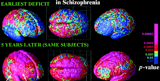 Schizophrenia.com - Schizophrenia Fact and Schizophrenia ...