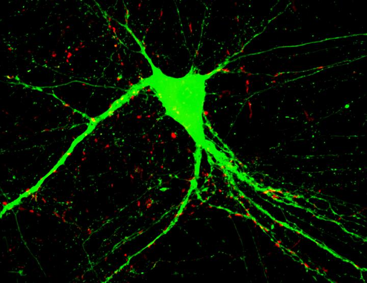This is an image of a cultured neuron with an added BDNF protein.  Credit:  Duke-NUS Graduate Medical School Singapore.