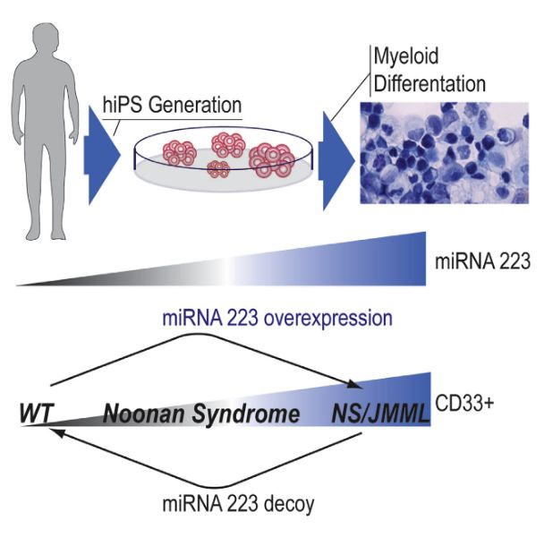 Somatic PTPN11 mutations cause juvenile myelomonocytic leukemia (JMML). Germline PTPN11 defects cause Noonan syndrome (NS), and specific inherited mutations cause NS/JMML. Here, we report that hematopoietic cells differentiated from human induced pluripotent stem cells (hiPSCs) harboring NS/JMML-causing PTPN11 mutations recapitulated JMML features. hiPSC-derived NS/JMML myeloid cells exhibited increased signaling through STAT5 and upregulation of miR-223 and miR-15a. Similarly, miR-223 and miR-15a were upregulated in 11/19 JMML bone marrow mononuclear cells harboring PTPN11 mutations, but not those without PTPN11 defects. Reducing miR-223's function in NS/JMML hiPSCs normalized myelogenesis. MicroRNA target gene expression levels were reduced in hiPSC-derived myeloid cells as well as in JMML cells with PTPN11 mutations. Thus, studying an inherited human cancer syndrome with hiPSCs illuminated early oncogenesis prior to the accumulation of secondary genomic alterations, enabling us to discover microRNA dysregulation, establishing a genotype-phenotype association for JMML and providing therapeutic targets.  Myeloid Dysregulation in a Human Induced Pluripotent Stem Cell Model of PTPN11-Associated Juvenile Myelomonocytic Leukemia.  Gelb et al 2015.