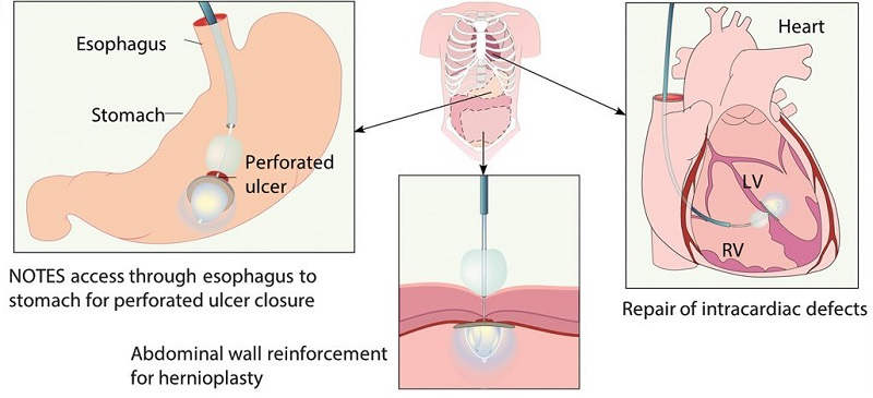 A transcatheter light-reflecting technology that delivers and activates a photocurable adhesive.  Artistic representation of potential applications for the device, including repair of perforated peptic ulcer, abdominal wall, and intracardiac defects.  A light-reflecting balloon catheter for atraumatic tissue defect repair.  del Nido et al 2015.
