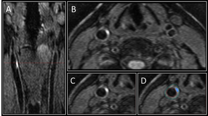 ft 3-D MRI shows early signs of stroke risk in diabetic patients - healthinnovations
