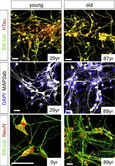 ft Researchers learn how to grow old brain cells - neuroinnovations