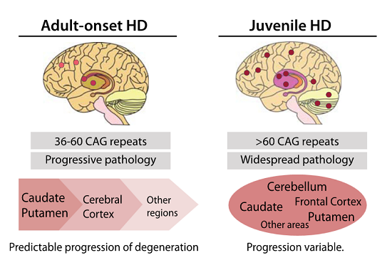 ft UF Health researchers identify novel proteins linked to Huntington's disease - neuroinnovations