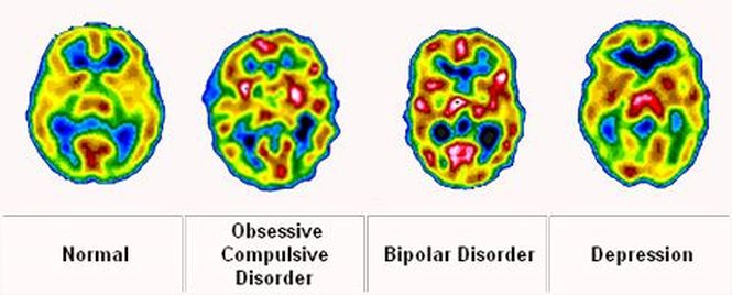 Brain composition and bipolar disorder. MRI studies indicate many compositional differences between brains of individuals with bipolar disorder and individuals without. This supports the idea that bipolar disorder is a confluence of both environmental and biological factors. Credit: Bipolar Lives.
