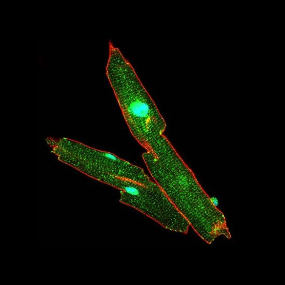 Pictured are isolated adult mouse cardiomyocytes labeled for dystrophin (red), neuronal nitric oxide synthase (nNOS) (green), and nuclei (blue). Unlike skeletal muscle, where nNOS physically binds to the dystrophin, nNOS does not directly bind to dystrophin. University of Michigan researchers identified the role of the AMPK pathway for increasing nitric oxide production in mechanically stretched muscle cells.