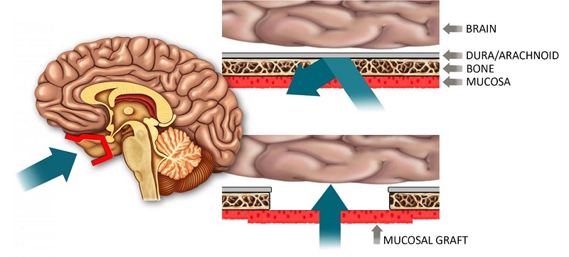 Illustrated concept of delivery method for drugs used to treat a variety of central nervous system diseases. The drugs may be administrated through the nose and diffused through an implanted mucosal graft (A, in red) to gain access to the brain. Under normal circumstances, there are multiple layers within the nose that block the access of pharmaceutical agents from getting into the brain, including bone and the arachnoid membrane, which represents part of the blood-brain barrier (B). After endoscopic skull base surgery, all of these layers are removed and replaced with a nasal mucosal graft (C ), which is 1,000 times more porous than the native blood-brain barrier. Consequently, the grafts may be used to deliver very large drugs, including proteins, which would otherwise be blocked by the blood-brain barrier. Design and illustration by Benjamin Bleier, M.D., and Garyfallia Pagonis.