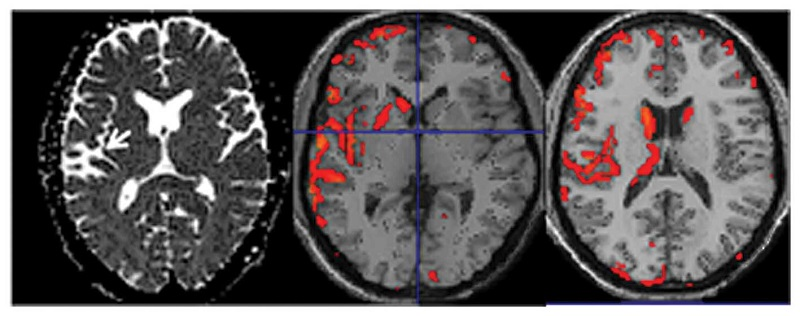 ADC maps (left image) and voxel-based morphometry (VBM) results (middle and right images) of a 55 year old patient with a left temporal stroke (white arrow). The VBM results are overlaid on a template image showing atrophy in certain areas.  Diffusion tensor and volumetric magnetic resonance imaging using an MR-compatible hand-induced robotic device suggests training-induced neuroplasticity in patients with chronic stroke.  Tzika et al 2013.