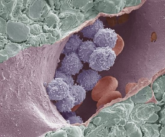 Bone marrow, coloured scanning electron micrograph (SEM). This freeze-fracture has revealed the cavity (lumen) of a large venous sinus (pink), which contains mature blood cells (red), and developing white blood cells (blue). Either side of the sinus are the haemopoetic foci of the marrow (green). Magnification: x3000 when printed at 10 centimetres across.  Credit: STEVE GSCHMEISSNER/SCIENCE PHOTO LIBRARY.