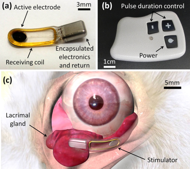 Chronic stimulator and placement. (a) Fully-implantable stimulator with a 3 mm diameter active electrode. (b) Wireless power transmitter with pulse duration control. (c) Stimulator within the orbit, adjacent to the inferior lacrimal gland. Electronic enhancement of tear secretion. Palankar et al 2015.