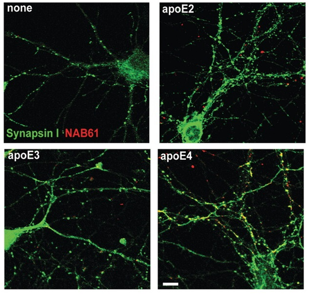 ApoE4 enhances colocalization of oligomeric amyloid-β with synaptic elements in vitro. For in vitro experiments, cultured mouse neurons were treated with oligomeric amyloid-β-containing media and lipidated apoE particles for 48h, fixed, permeabilized and immunostained to determine the level of colocalization between oligomeric amyloid-β, apoE and presynaptic elements. ApoE4 treated cultured neurons showed enhanced localization of oligomeric amyloid-β at synaptic sites. While all isoforms of apoE colocalized with synaptic elements to a marked extent. Apolipoprotein E4 effects in Alzheimer's disease are mediated by synaptotoxic oligomeric amyloid-β. Jones et al 2012.