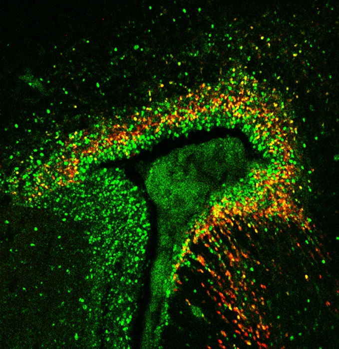The autism-linked protein MDGA1 (red) is found in the zones of the brain that give rise to new neurons (green).  Credit: Salk Institute.