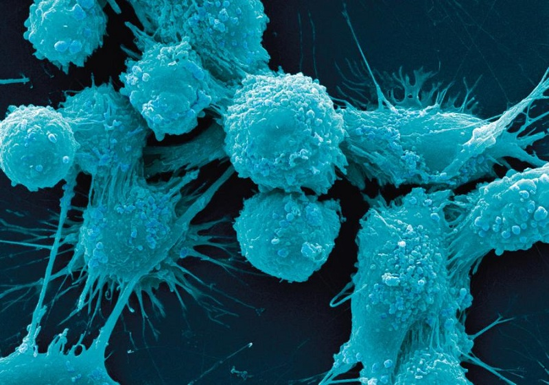 Human prostate cancer cells SEM.  Credit: © Dr. Gopal Murti/Visuals Unlimited/Corbis.