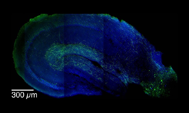 This is an image showing LRIP inhibitory neurons (in green) extending from the entorhinal cortex (lower right) into the hippocampus. LRIPs have been found to be part of a sophisticated mechanism that is critical to the formation of contextual memories. Credit: Jayeeta Basu.