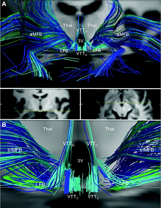 Divergence of the medial forebrain bundle, LFB, and ventral tegmental tracts in the posterior hypothalamus. (A) Anterior view of streamlines generated from the locus coeruleus (dark blue), dorsal raphe (turquoise), and median raphe (green) superimposed upon axial and coronal T1-weighted images (center inset) for a representative subject. In the posterior hypothalamus, streamlines from the locus coeruleus, dorsal raphe, and median raphe diverge as the follows: (1) slMFB, connecting to the prefrontal cortex; (2) VTTR, connecting to the paraventricular nuclei of the thalamus (Thal); (3) the VTTC, connecting to the anterior hypothalamus and basal forebrain, running alongside the imMFB; and (4) LFB, connecting to temporal limbic sites. (B) Zoomed view of the image in (A) demonstrates the divergence of the slMFB, VTTR, VTTC, and LFB in the posterior hypothalamus. Anatomic landmark; third ventricle (3V).  The Structural Connectome of the Human Central Homeostatic Network.  Edlow et al 2015.